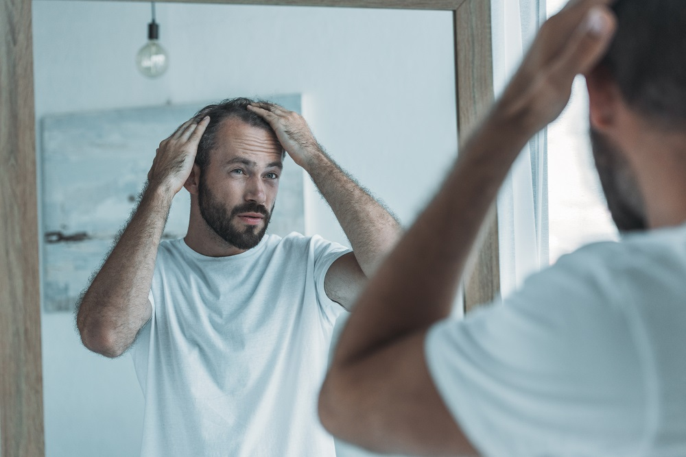 What You Should Know About Men's Hair Loss