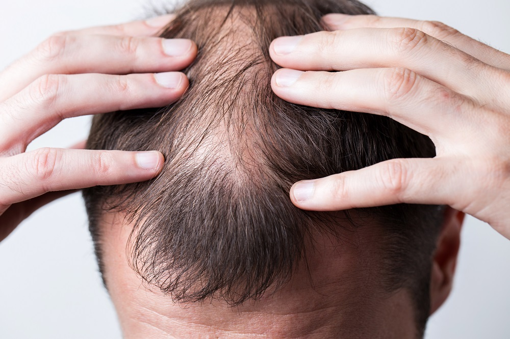 Men's Hair Loss problem