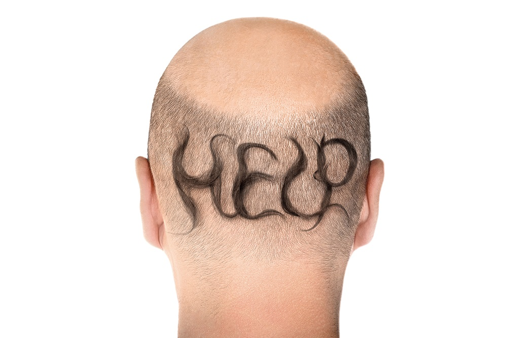 Answering the Most Common Questions About Men's Hair Loss